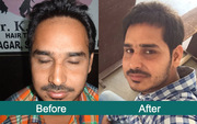 Hair Transplant in Ludhiana