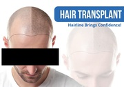 How to find the Hair Transplant In Nawanshahr?