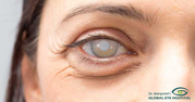 Best Eye Hospital in Patiala