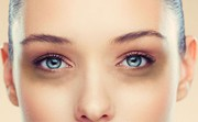 Find Under Eyes Dark Circles  Treatment in Ludhiana